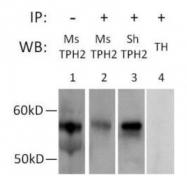 GTX31130 - Tryptophan 5-hydroxylase 2 (TPH2)