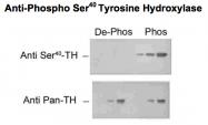 GTX31134 - Tyrosine 3-monooxygenase (TH)