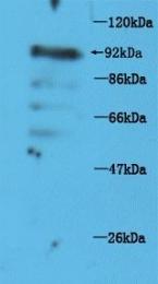 GTX37319 - TRPV1 / Vanilloid receptor 1