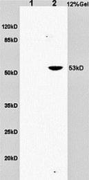 GTX37452 - CD30