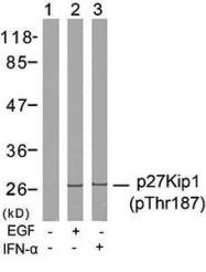 GTX38594 - CDKN1B / KIP1
