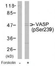 GTX38661 - VASP