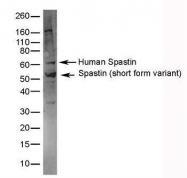 GTX39050 - Spastin / SPAST