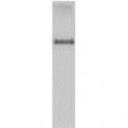 GTX40455 - Entamoeba histolytica