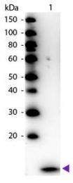 GTX40576 - Beta-2-microglobulin