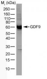 GTX41002 - GDF9