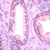 GTX41126 - Streptococcus agalactiae