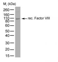 GTX41189 - Coagulation factor VIII (F8)