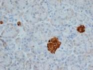 GTX41688 - Chromogranin A