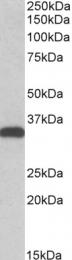 GTX41958 - Carbonyl reductase 3