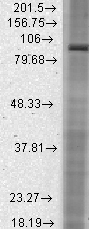 GTX41986 - HCN2 / BCNG2