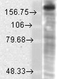GTX42016 - NMDAR2B