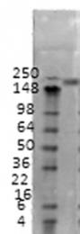 GTX42045 - SCN2A