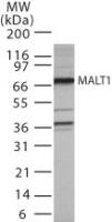 GTX42103 - MALT1