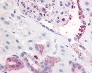 GTX42417 - CD140b / PDGFRB