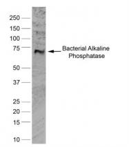 GTX42809 - Alkaline phosphatase / ALPL