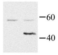 GTX44501 - G protein alpha 15