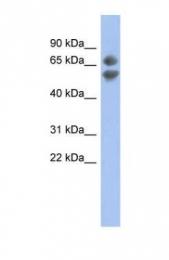 GTX44814 - PDCD7