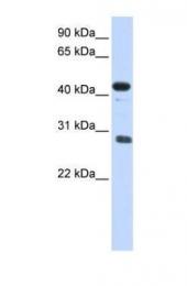 GTX44862 - CDCA5 / Sororin