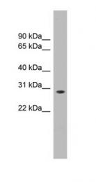 GTX44899 - ENOPH1