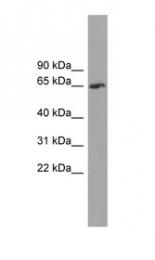 GTX44910 - TBC1D24