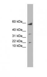 GTX44917 - LYRM1