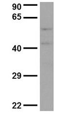 GTX45016 - Dynactin subunit 4
