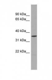 GTX45025 - UCHL5
