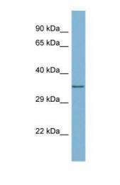 GTX45026 - MEMO1