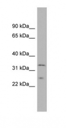GTX45036 - Methionine Sulfoxide Reductase A / MSRA