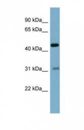GTX45047 - PFDN5