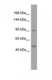 GTX45051 - Plakophilin-2