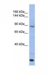 GTX45081 - UNC45A