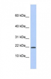 GTX45103 - HCFC1R1 / HPIP