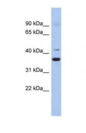 GTX45136 - GADL1