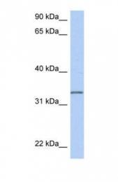 GTX45161 - C3orf62