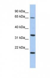 GTX45170 - TPRG1