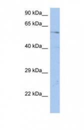 GTX45223 - DCBLD1
