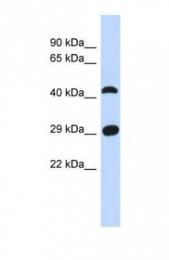 GTX45258 - C4orf22