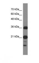 GTX45302 - C1orf144