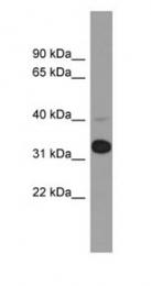 GTX45324 - METAP1