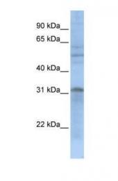 GTX45343 - MTCH2