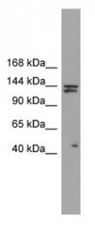 GTX45354 - Isoleucyl-tRNA synthetase / IARS