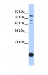 GTX45360 - Thioredoxin-2 / TRX2