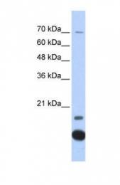 GTX45361 - Thioredoxin-2 / TRX2