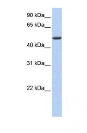 GTX45378 - TDAG51 / PHLDA1