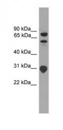 GTX45417 - SH3KBP1