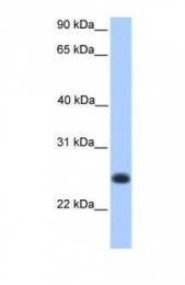 GTX45421 - C12orf68
