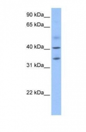 GTX45443 - ZC3H14