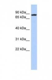 GTX45455 - RNA exonuclease NEF-sp
